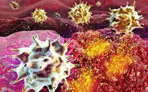 Onkológia