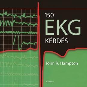 150 EKG kérdés (javított kiadás) 2020