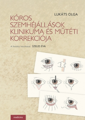 Kóros szemhéjállások klinikuma és műtéti korrekciója 505
