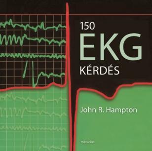 150 EKG kérdés