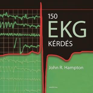 150 EKG kérdés (javított kiadás)