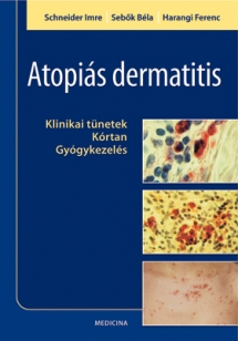 Atopiás dermatitis