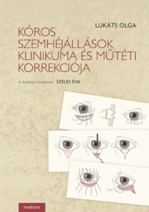 Kóros szemhéjállások klinikuma és műtéti korrekciója