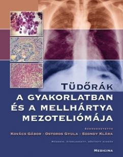 Tüdőrák a gyakorlatban és a mellhártya mezoteliómája